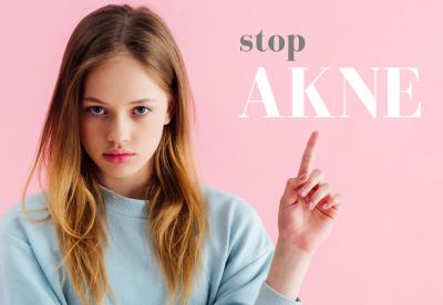 AKNE – reagirajte pravočasno in preprečite brazgotine